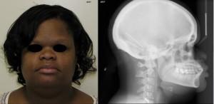 Brachycephalic Face Shape