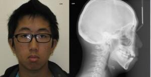 Dolichocephalic Face Shape