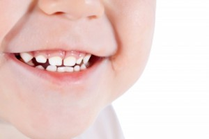 Mouth Breathing and Orthodontics